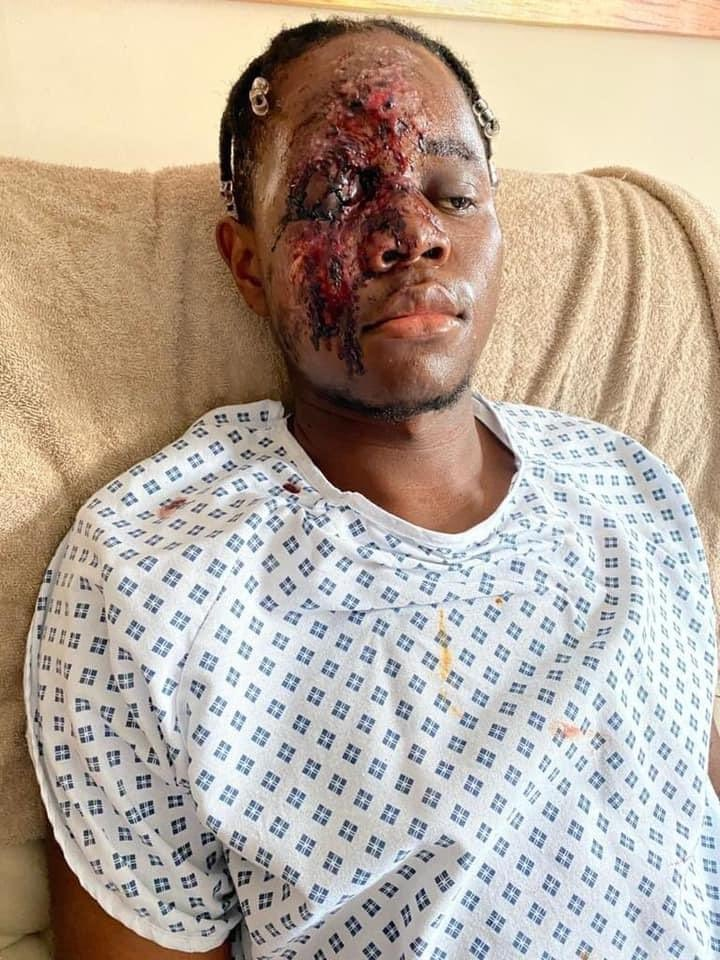 Black NHS Worker Survives Being Mowed Down by Sadistic Thugs After Racial Attack in Bristol