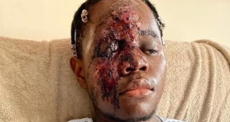 NHS worker Racial attack victims fundraiser reaches £28000