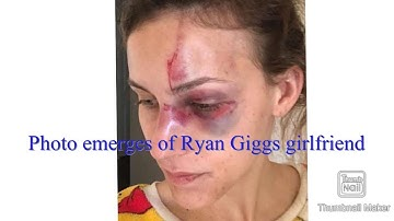 Pictures emerge of battered Ryan Giggs Girlfriend According To Brownie